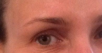 kurze łapki pod oczami