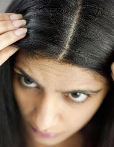 łupież we włosach