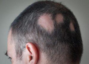 łysiejąca głowa